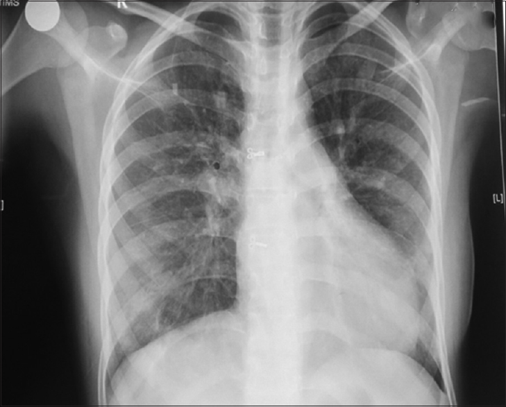 Figure 1: Chest X-ray.