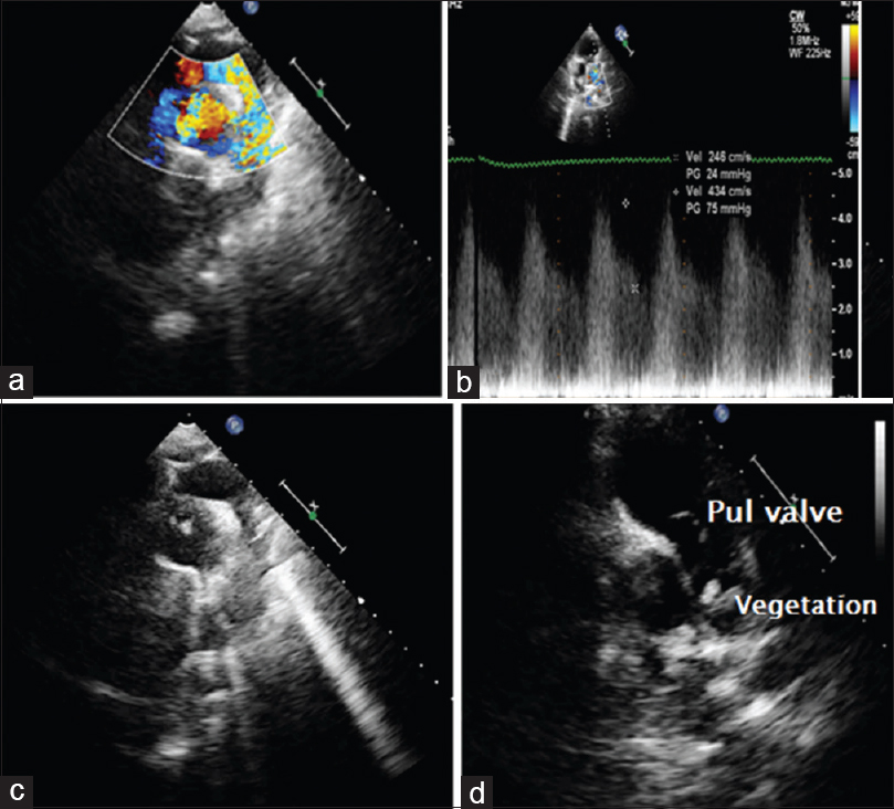 Figure 3: Echocardiogram. (a) Modified suprasternal view - profiling patent ductus arteriosus. (b) Continuous flow of patent ductus arteriosus. (c) Two vegetations in pulmonary artery. (d) Short-axis view at aortic valve showing two vegetations in main pulmonary artery just before bifurcation.