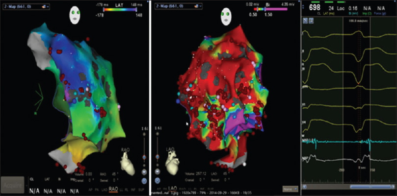 Figure 2: The ablation site: Right oblique anterior view of endocardial voltage mapping showing mild fibrofatty replacement of the right ventricle.
