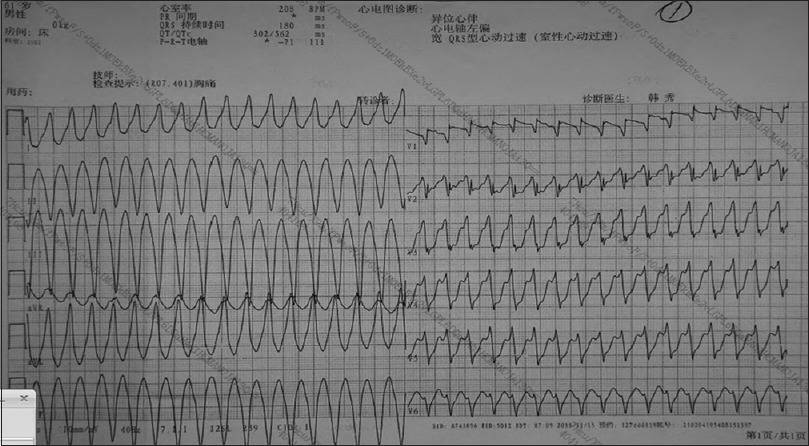 Figure 3: Ventricular tachycardia before electrical cardioversion.