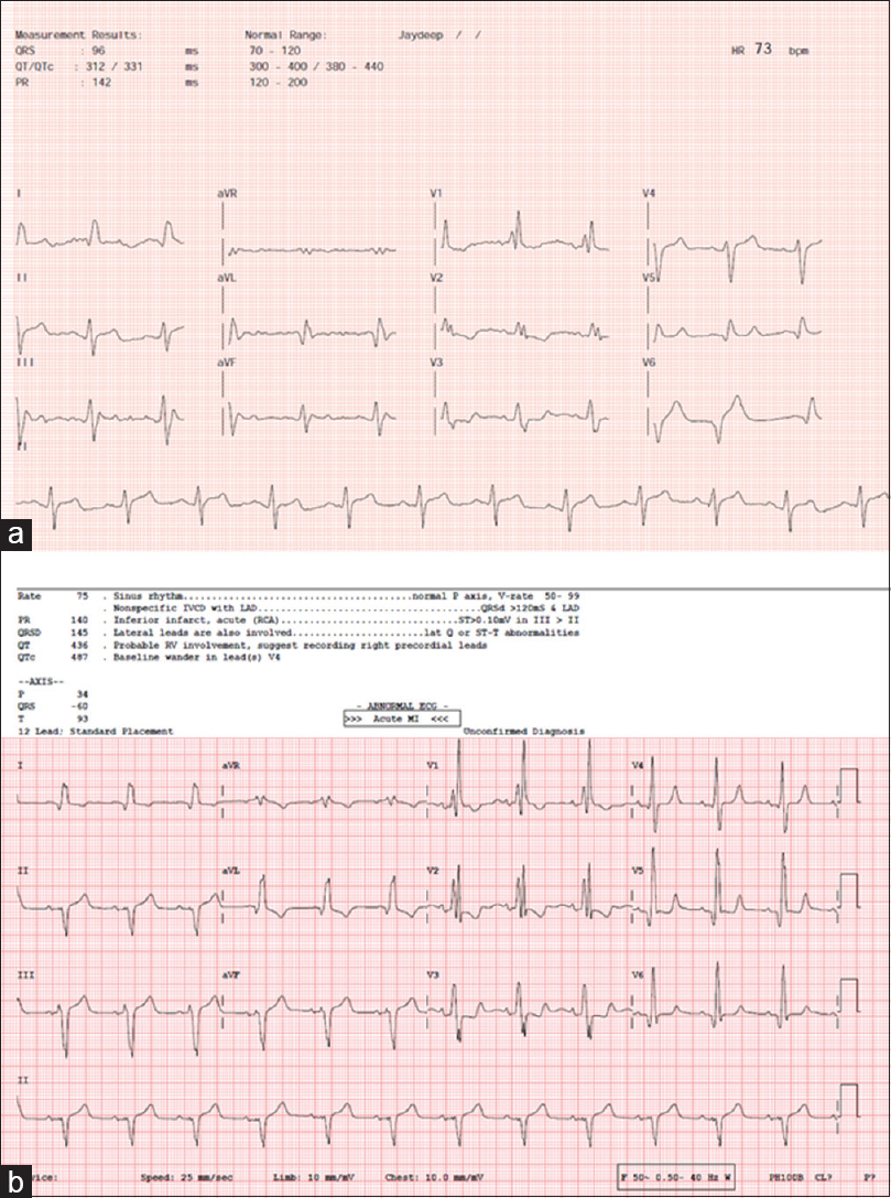 Figure 4: Electrocardiogram obtained as PDF from Sanket life mobile app (a) and the corresponding electrocardiogram (b) from a conventional electrocardiogram machine in a patient with congenital heart disease.