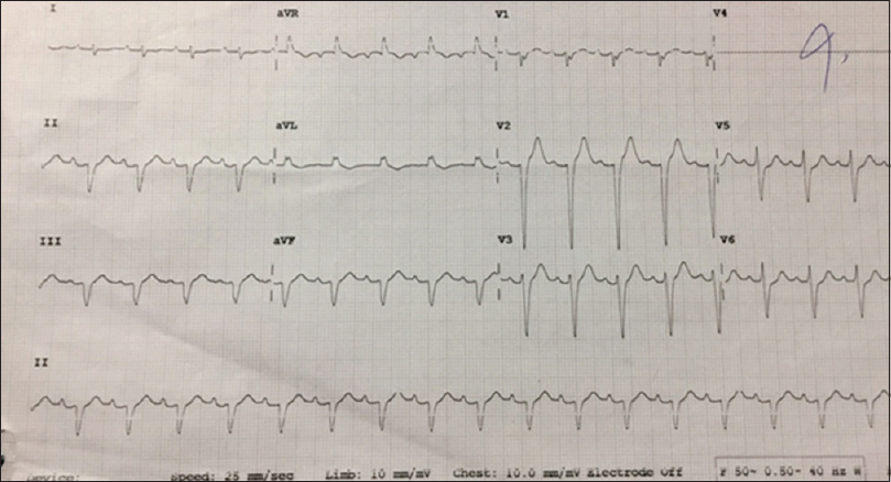 Figure 1: An electrocardiogram from the patient, shows low voltage with left-axis deviation with a pseudo-infarct pattern in leads V1–V3.